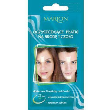 Marion – oczyszczające płatki na brodę i czoło (1 op.)